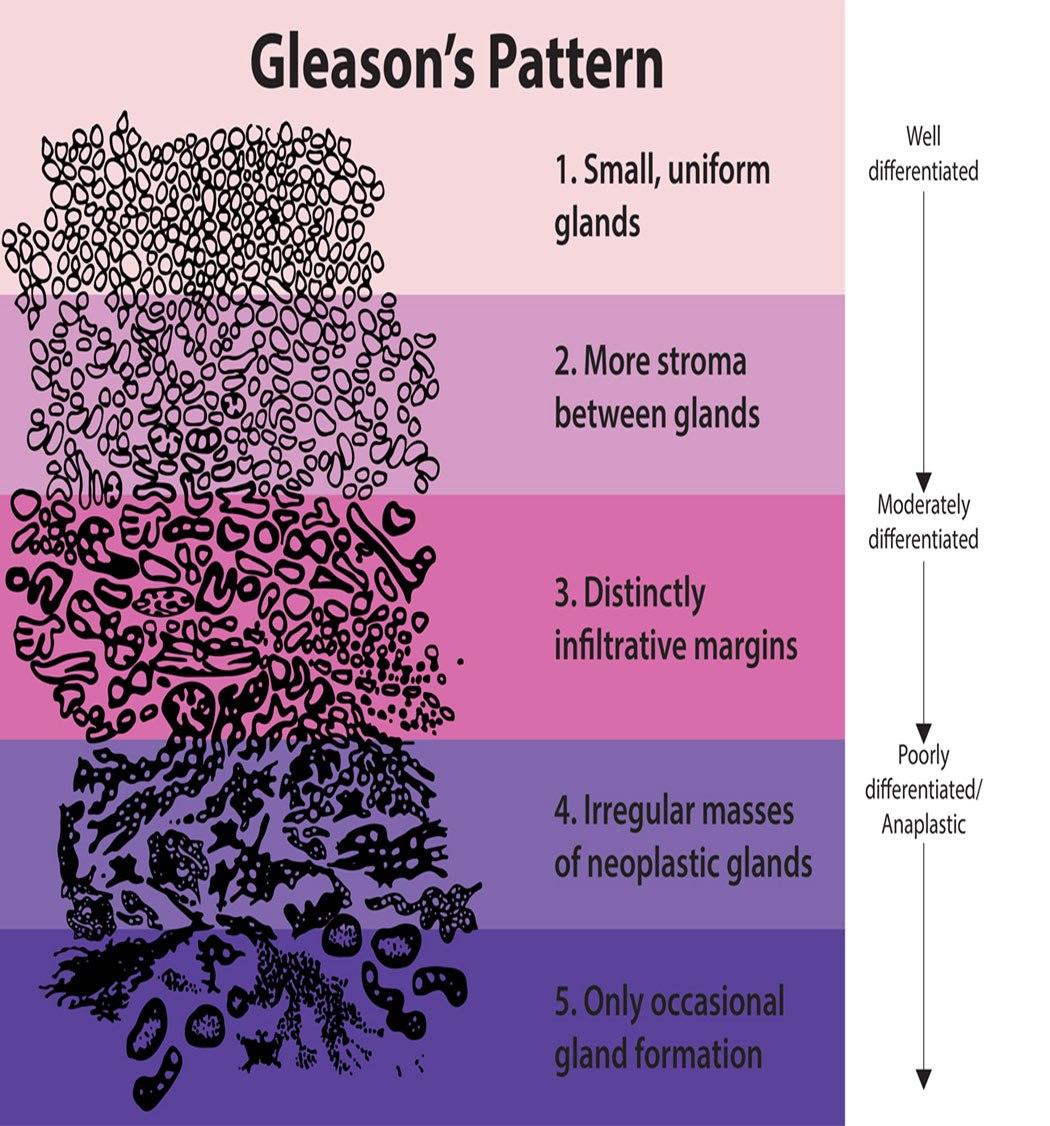 GLEASON CHART