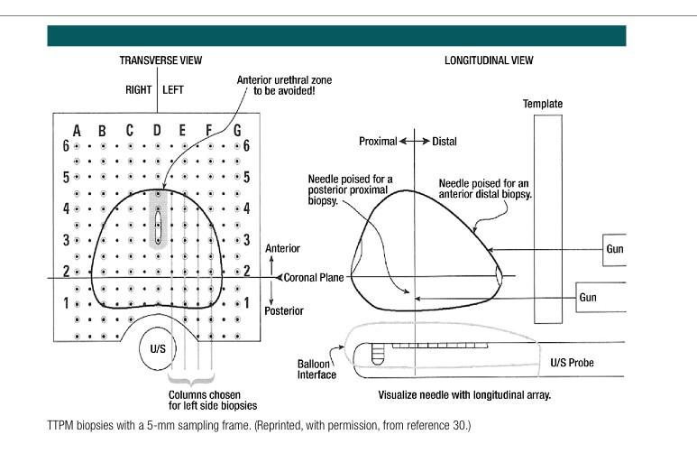 Prostate gland sampling frame