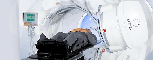 Image of IMRT Radiation Therapy