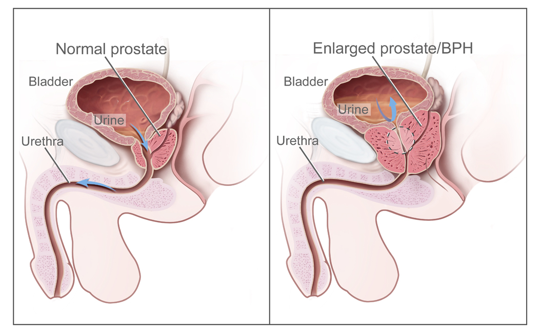 Overview of normal and enlarged prostate