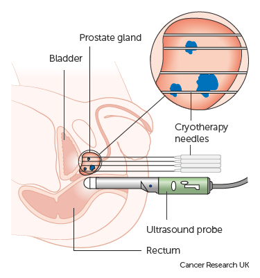 Focal Cryotherapy for prostate cancer